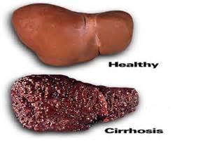 cirrhosis picture 18
