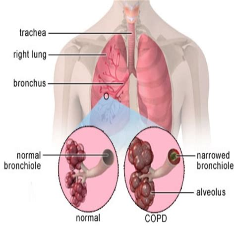 natural remedies for copd picture 5