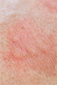 allergy skin picture 9
