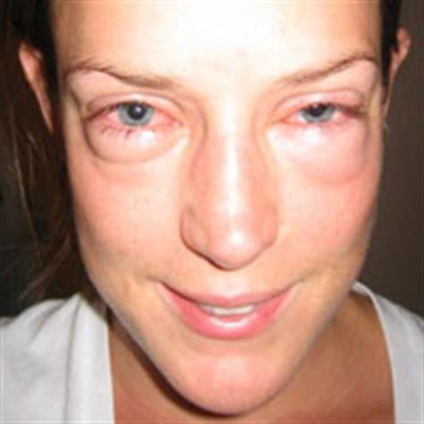 allergy in skin around eyes picture 6