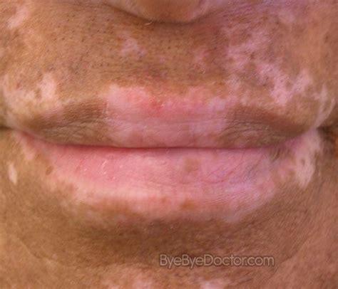 fungal skin rash picture 10