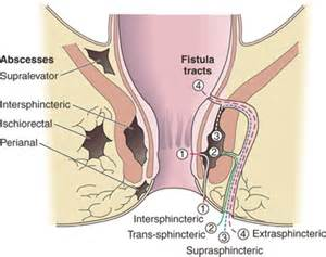 internal hemorrhoids picture 10