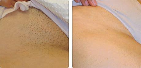 bikini hair removal picture 9