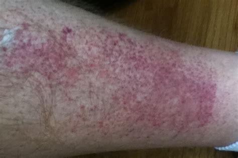 skin rash on trunk an arms picture 14