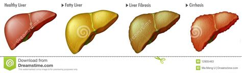 bloodwork show liver cancer picture 10