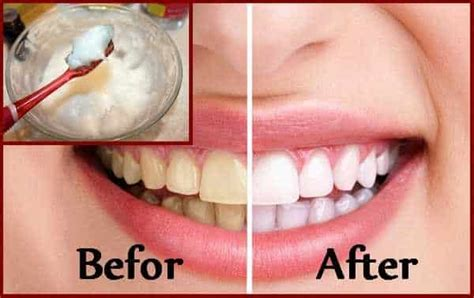 baking soda and peroxide to whiten teeth picture 13