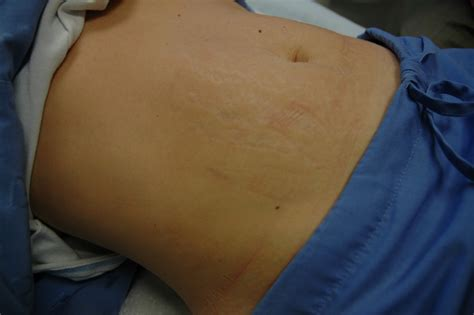 how to remove stretch mark naturally picture 7