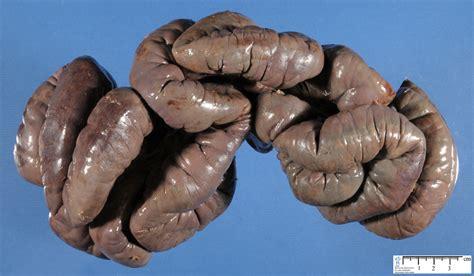bowel infarction picture 11