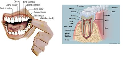 rotten tooth hurts home remedy picture 2