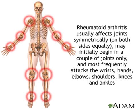 arthritis in every joint of the body picture 1