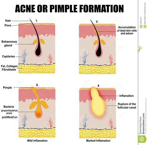 keratin hair process picture 6