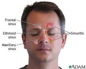 sinus pain relief picture 5