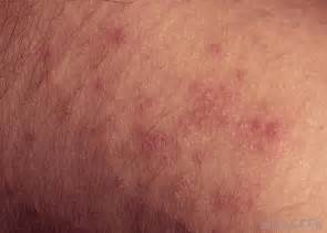 skin rash going around in 2014 picture 18