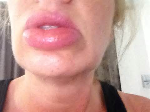 pics of alergic reactions on lips picture 1