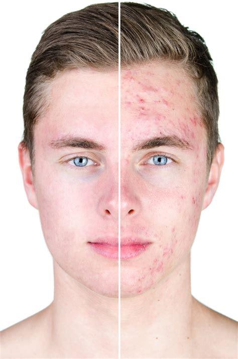acne from marijuana picture 10