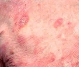 lymphoma skin rash picture 5