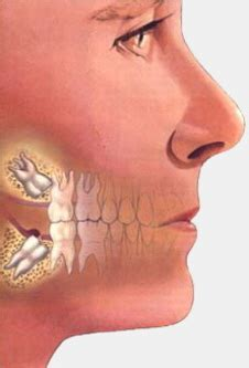 correcting impacted teeth picture 3