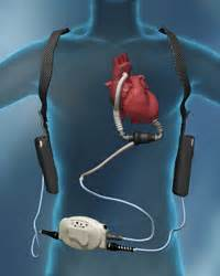 yeast in blood system with lvad picture 19