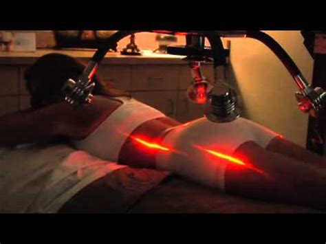 weight loss laser treatment picture 5