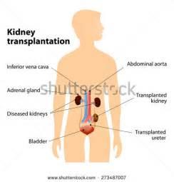 kidney transplantation and skin boils picture 5