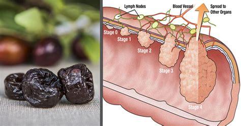 colon tumor picture 8