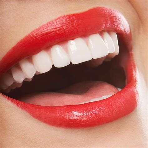 will hydrogen peroxide whiten your teeth picture 8