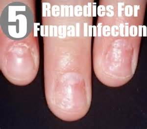 herbs for fungal infection in nigeria picture 3