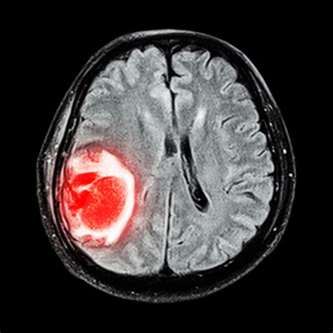 brain cancer causiing insomnia picture 5