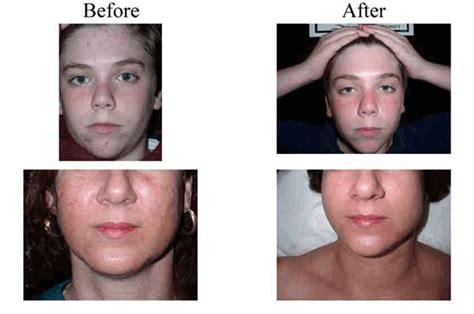 sauna for acne picture 5
