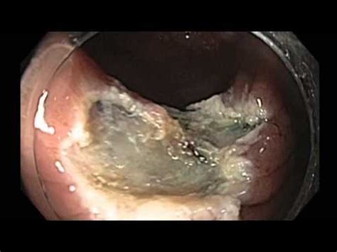 pictures of colon polyps before and after biopsy picture 8