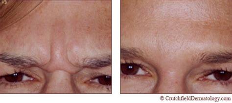 dermatology acne shots picture 10