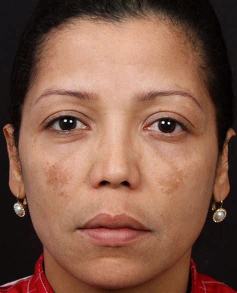 hystersisters brown discolorations on face picture 7