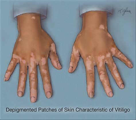 can thyroid cause vitiligo picture 7