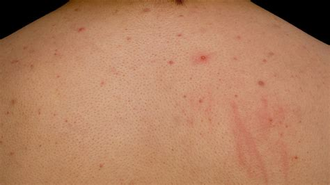 does c4 cause chest acne picture 10