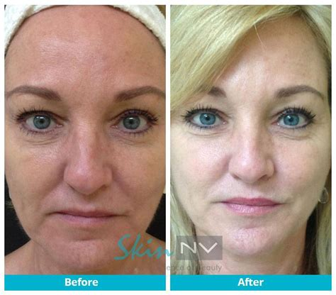 is sculptra good for acne scaring picture 13