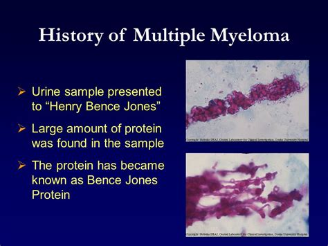 bladder myeloma picture 9