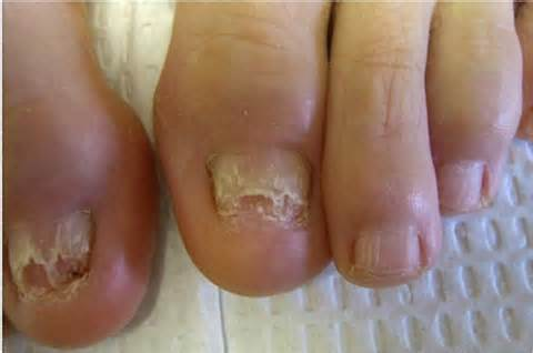 what causes nail fungus picture 7