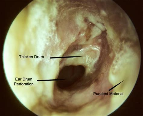 candida clear for yeast infection in ear picture 5