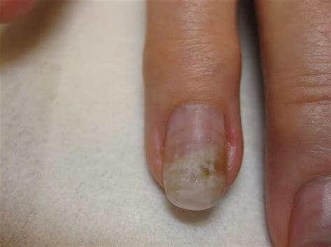 artificial nail fungus picture 15