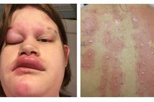 alleegic reaction on lips pictured picture 1