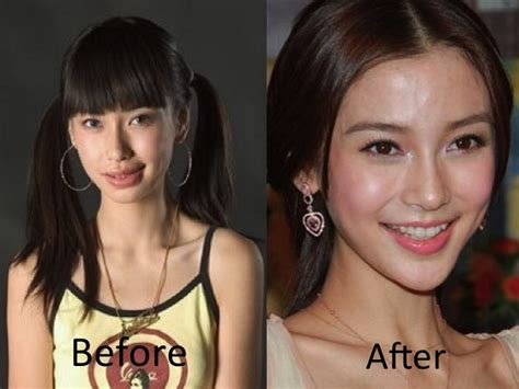 women aging plastic surgery hong kong picture 7