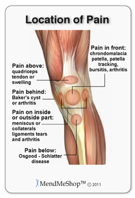 sore joints on the left side of the picture 16