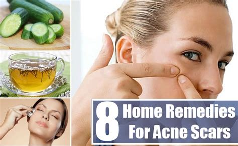 home remedies acne picture 13