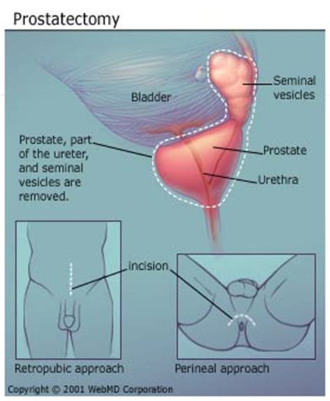 erectile dysfunction surgery picture 7