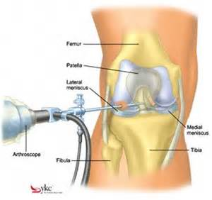 shot in the knee for pain picture 3