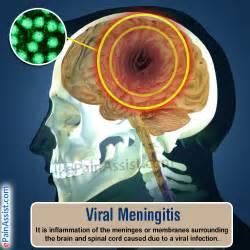 bacterial meningitis penetrated brain consequences picture 2