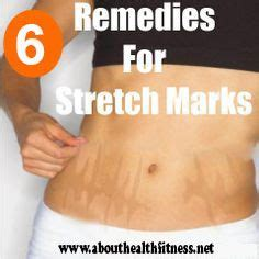 avitcid treatment for stretch marks picture 10