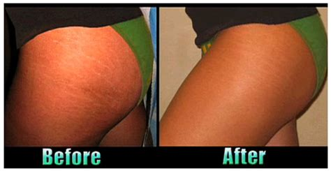 can mystic tan cover stretch marks picture 4