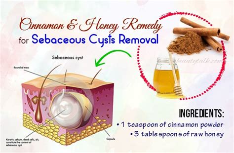 home remedy for pilar cyst picture 10