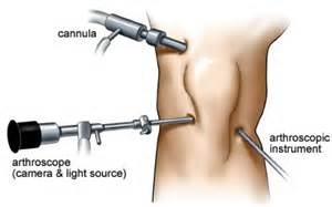 arthroscopy of knee joint picture 9